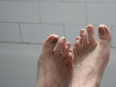 freaky toes